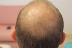 Efter behandling 1.5  måneder