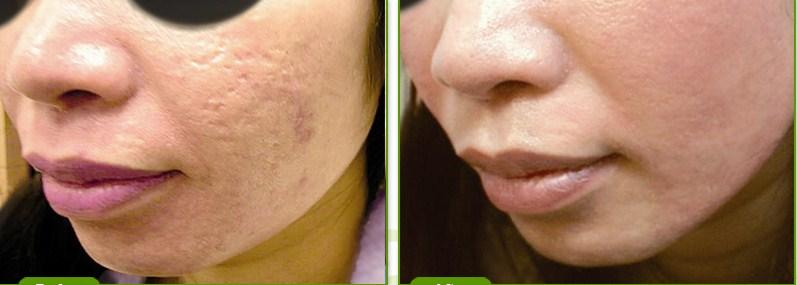 fjerne acne ar