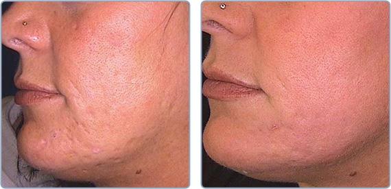 hudslibning før efter